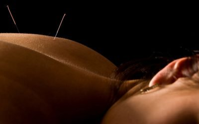 5 Reasons Why You Need Acupuncture in Your Life